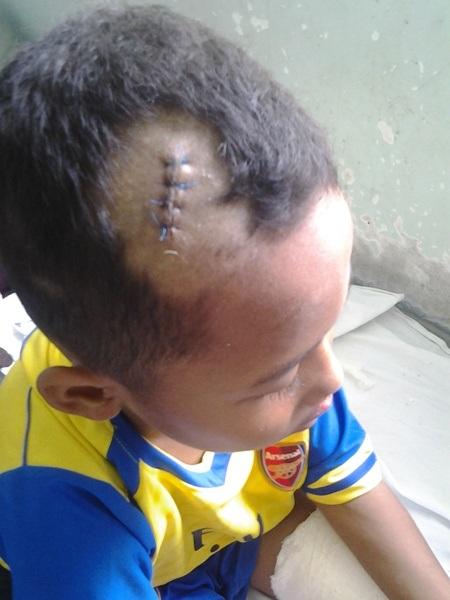 Phát còn bị vết thương ở đầu phải khâu nhiều mũi.
