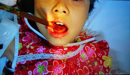 Bệnh nhân nhập viện trong tình trạng đôi đũa xuyên rách lưỡi, găm chặt trong miệng