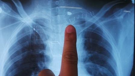 Viên đạn còn nằm lại trong vùng trung thất của bệnh nhân