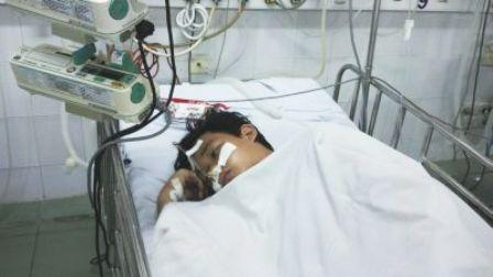 Sau 1 tuần điều trị, nạn nhân đã cai được máy thở, các chỉ số sinh hiệu ổn định