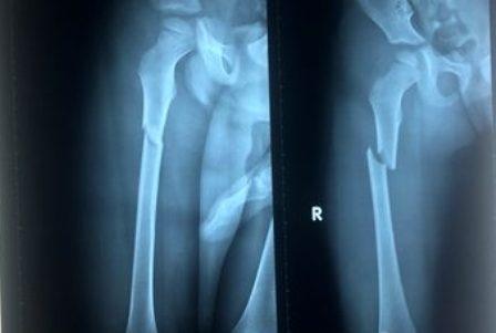 Hình ảnh phim X-quang cho thấy xương đùi phải của bé Thiện bị gãy