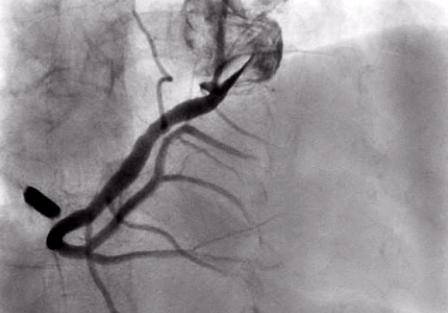 Mảnh hỏa khí nằm sắt đường đi động mạch vành phải trong tim bệnh nhân