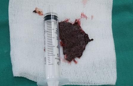 Mảnh lưỡi cưa được lấy ra sau phẫu thuật
