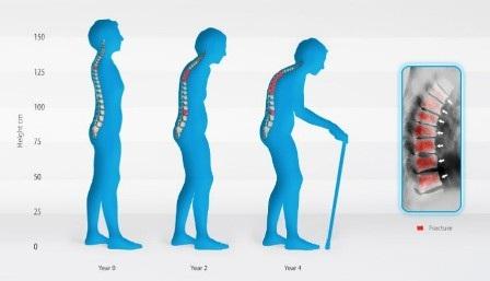 Bệnh loãng xương có thể phòng ngừa hiệu quả bằng chế độ ăn uống, vận động khoa học