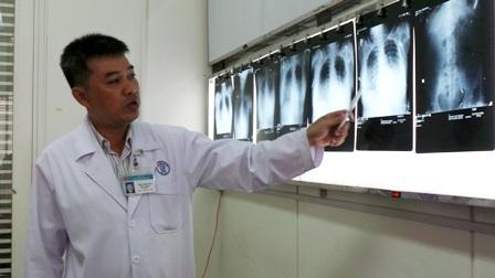 BS Thanh Linh cho biết hội chứng diễn ra cấp tính nhưng cơ hội cứu sống rất cao