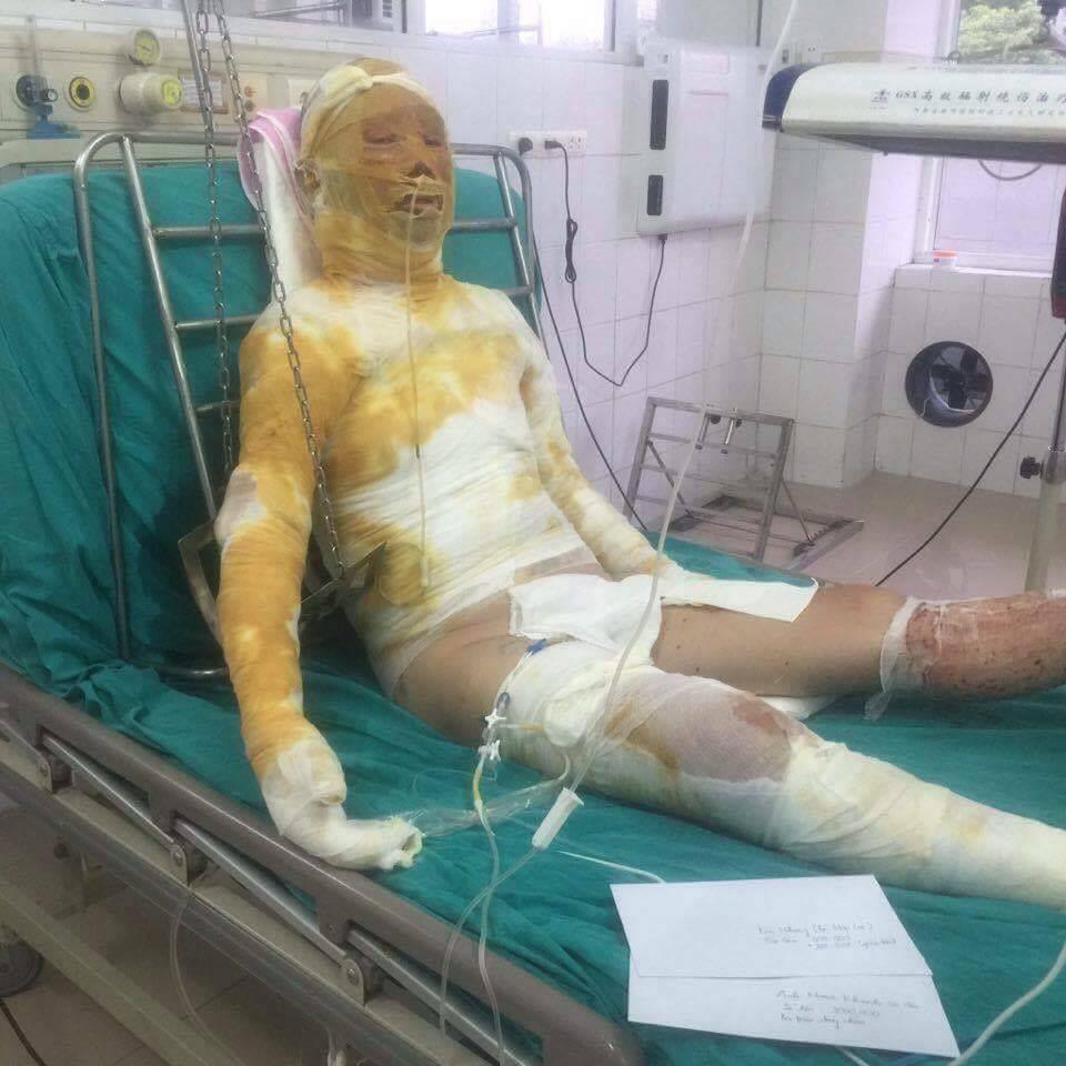 Chị Thắm đang được điều trị tại phòng 209, khoa Hồi sức Cấp cứu, Bệnh viện Bỏng Quốc gia Lê Hữu Trác.