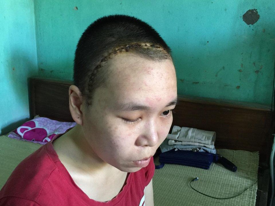 Sau ca phẫu thuật vừa diễn ra, dịch não tủy chảy ra nhiều hơn và Mỵ đã bị sụp mắt phải.