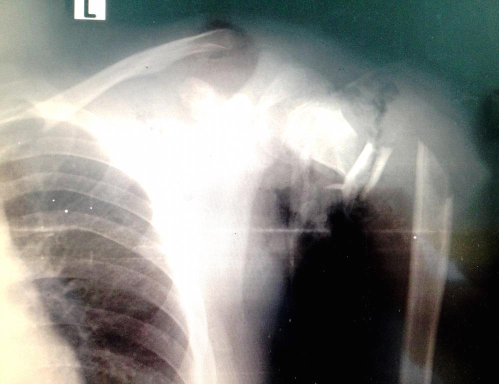 Hình ảnh chụp X Quang cánh tay đứt lìa của bệnh nhân lúc mới nhập viện.