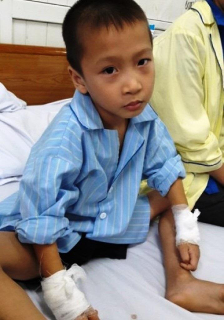 Bé Phạm Thành Luân bị BS mổ nhầm tay.
