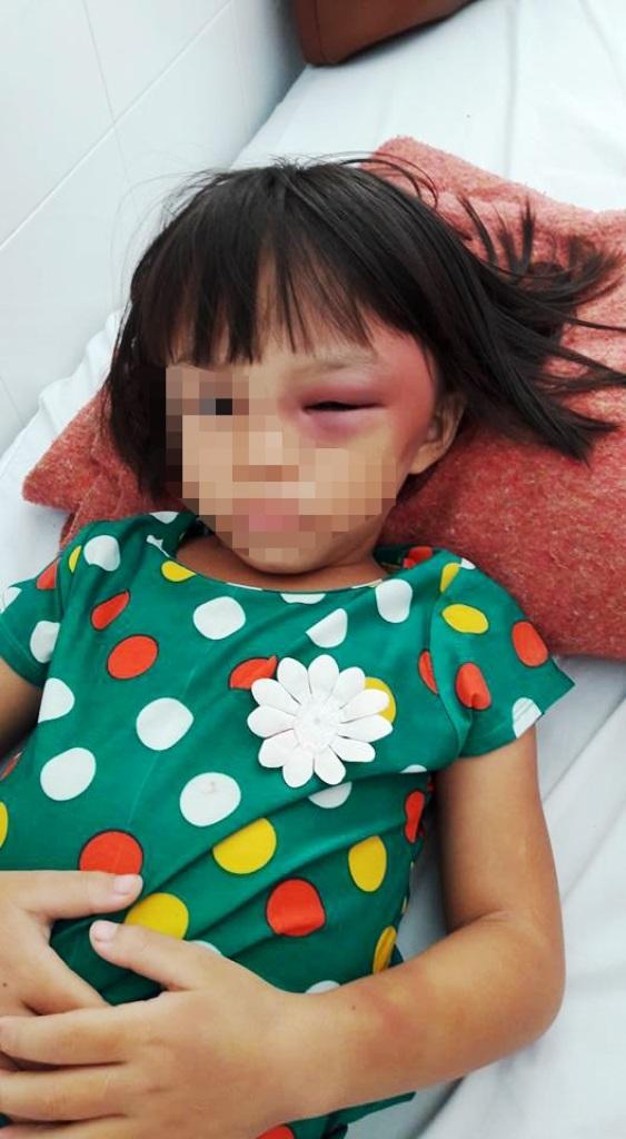 Thành viên Đội cứu nạn giao thông tình nguyện tỉnh Tây Ninh góp tiền đưa cháu T. đi bệnh viện điều trị