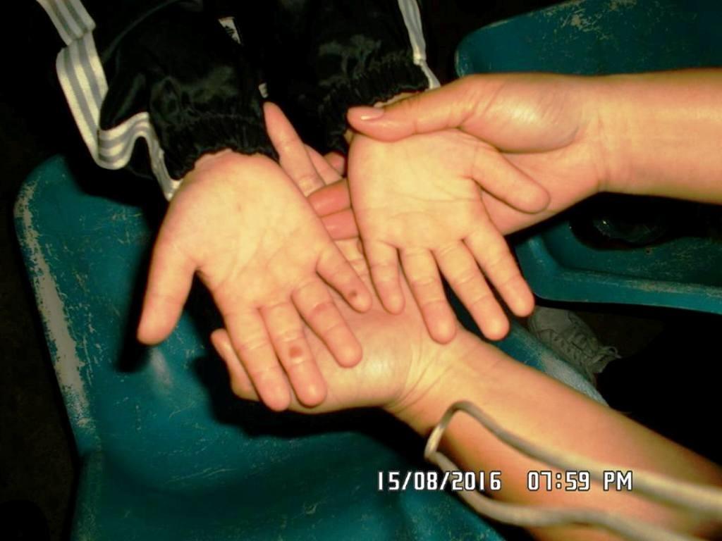 Bàn tay cháu Th. còn bị nhiều vết bỏng là những đốm tròn.