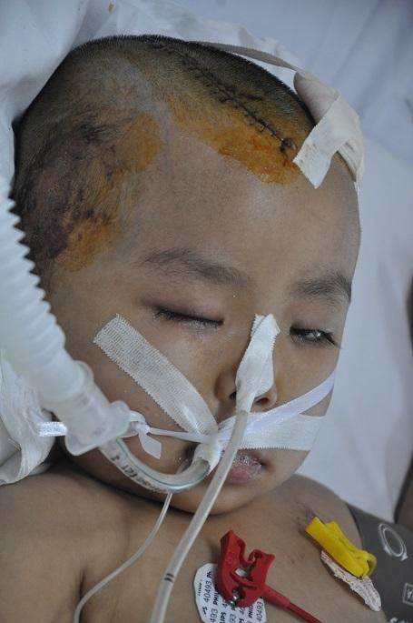 Bị chấn thương sọ não nặng, em đã được phẫu thuật lấy máu tụ tại bệnh viện Việt Đức.
