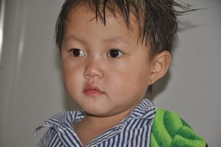 Bị ung thư võng mạc, bé Thúy Bang sẽ phải mổ khoét con mắt bên phải đi.