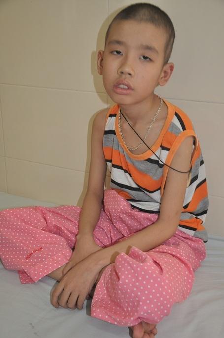 Bị u nguyên bào thần kinh khiến Luân phải phẫu thuật tại bệnh viện Việt Đức sau đó chuyển sang bệnh viện K xạ trị.