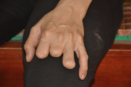 Vì bàn tay này nên chị Hằng không xin được việc làm trong nhiều năm.