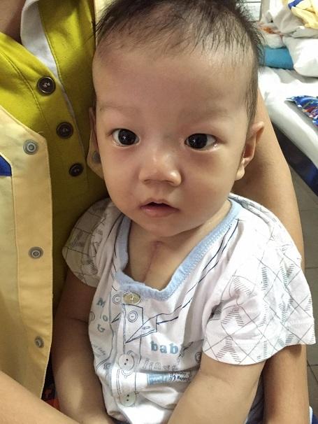 Trải qua ca mổ, đến nay tình hình sức khỏe của bé Đạt đã khá hơn nhiều.