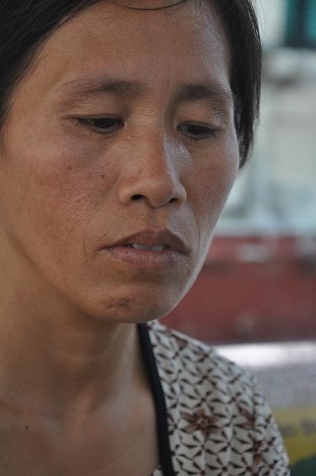 Chị Nhung với công việc đi gói đậu phụ thuê không có tiền để cứu con gái.