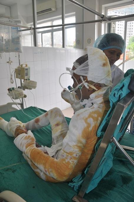 Bị bỏng nặng, anh Thu hiện đang điều trị tích cực tại Viện bỏng quốc gia với chi phí lên đến khoảng 10 triệu đồng/ ngày.