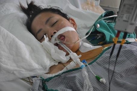 Chị gái em là em Nguyễn Thị Thúy được chẩn đoán viên cơ tim.