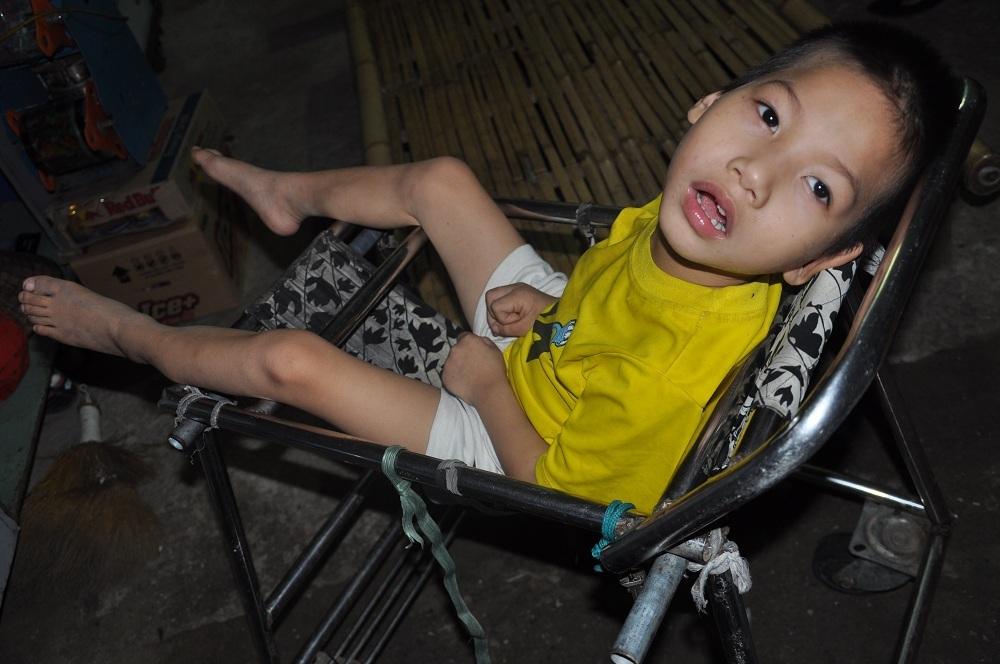 Sinh ra cháu Tâm hoàn toàn khỏe mạnh, sau trận sốt cháu được chẩn đoán bị di chứng của viêm màng não.