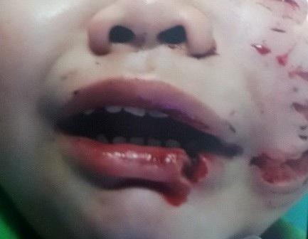 Trong lúc đùa giỡn với con chó ở nhà mình nuôi, bé Trần Trường T. (3 tuổi, ngụ tại huyện Củ Chi, TPHCM) bất ngờ bị chó cắn tới tấp, phải nhập viện khâu 200 mũi (Ảnh: Vân Sơn).