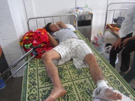 Anh Trần Mạnh Hùng bị đá trên xe tải rơi xuống làm gãy chân và tay