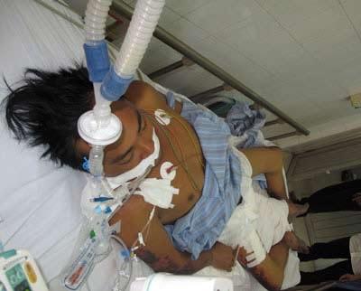 Nhiều bệnh nhân chịu di chứng suốt đời do phải tháo bỏ khớp vì hoại tử các đầu chi do liên cầu lợn.