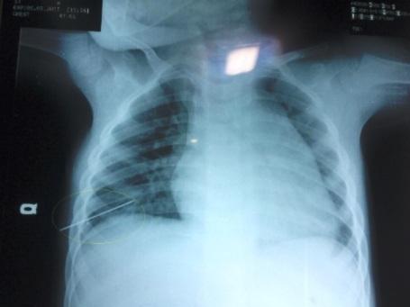 Các bác sĩ lấy ra trong lồng ngực bé C. một chiếc kim khâu dài khoảng 5cm