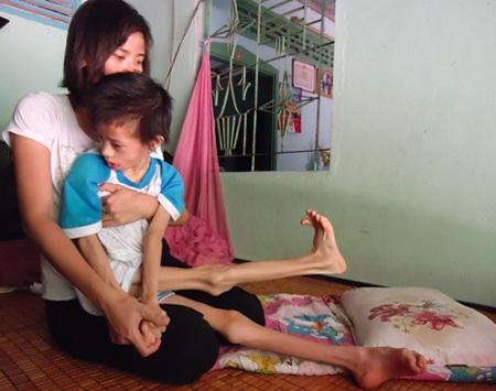 Nhật Lam sau khi mắc bệnh lạ đã bị bại não, co rút tứ chi