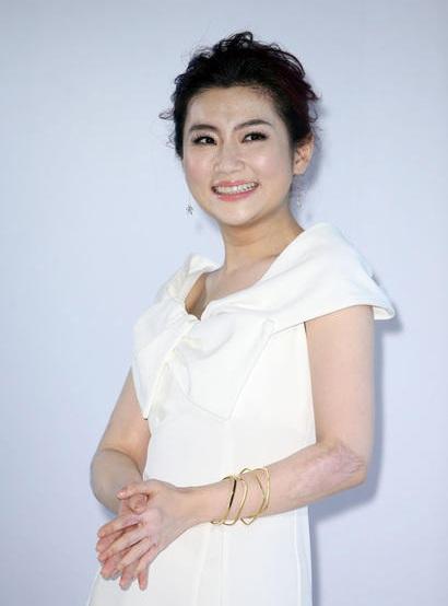 Nữ ca sĩ bị bỏng tự tin để lộ mặc váy không ngại sẹo