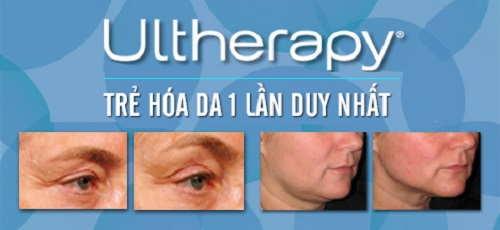 Trước và sau trị liệu với Ultherapy