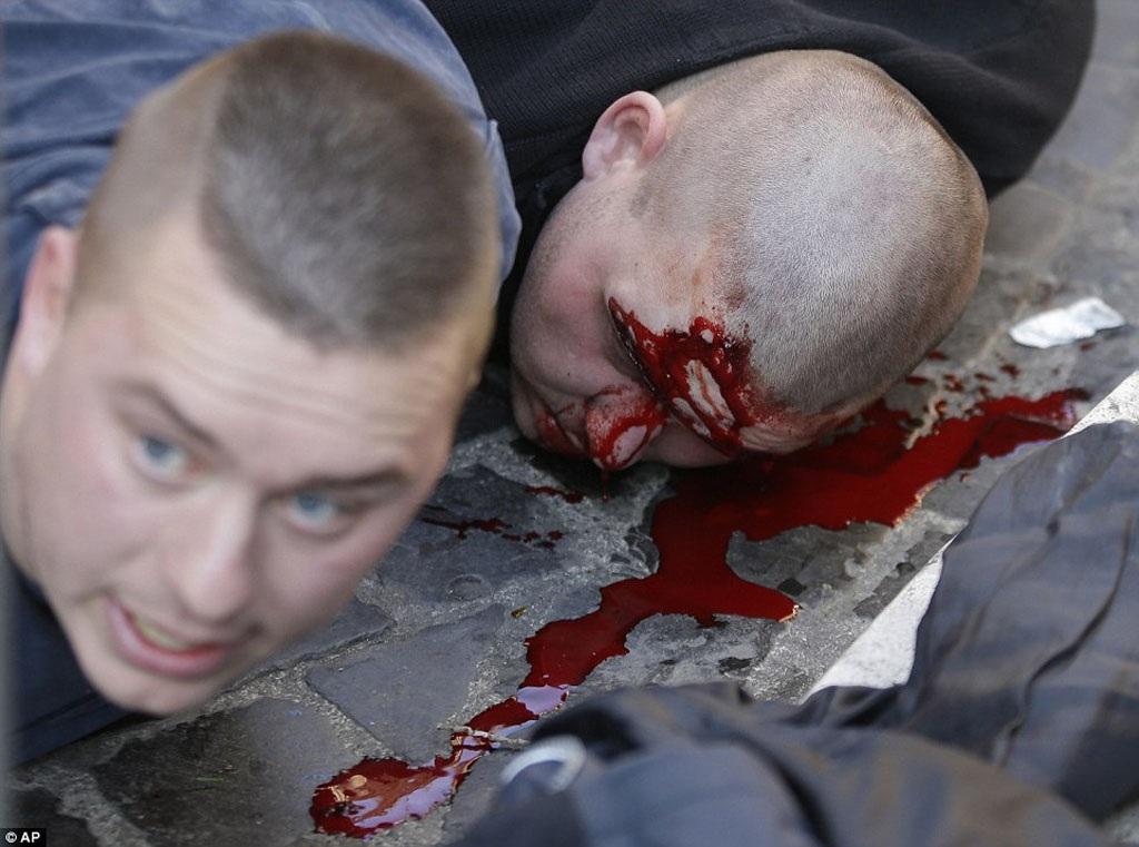Cảnh sát Roma đã dùng biện pháp mạnh trấn áp kẻ quá khích