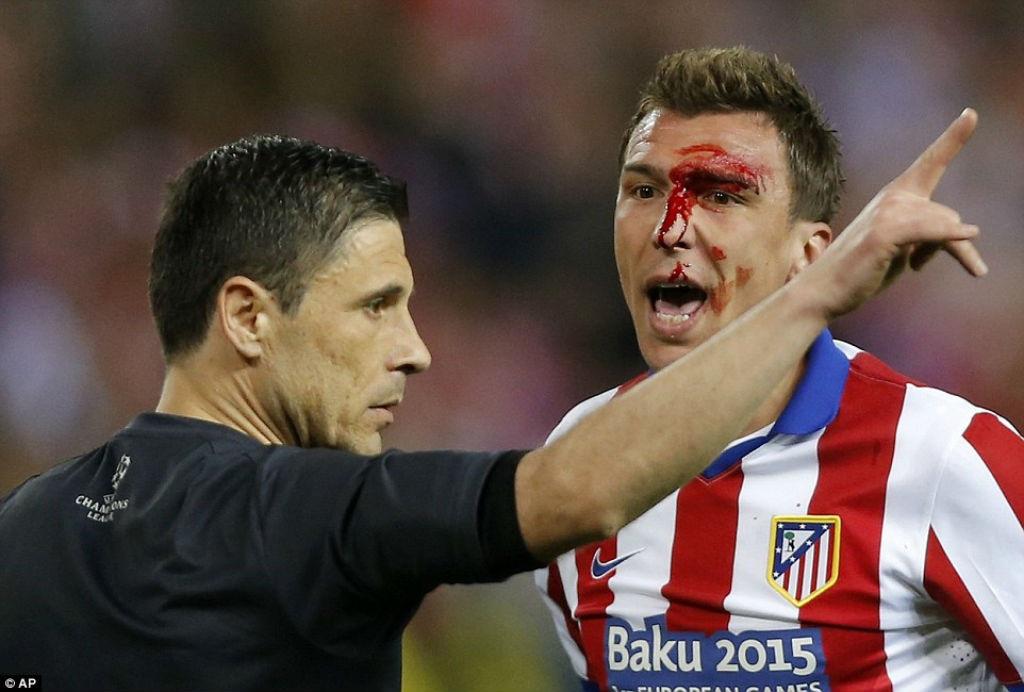 Khuôn mặt bê bết máu của Mandzukic
