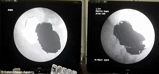 Ảnh chụp x-quang cho thấy dạ dày anh Singh chứa đầy những vật dụng kim loại nguy hiểm
