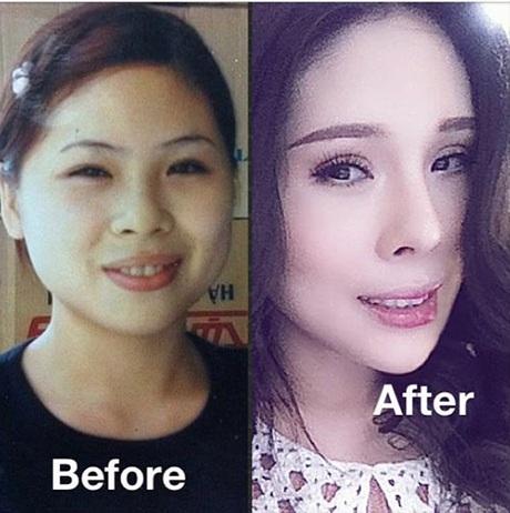 Tina Lê trước và sau khi tiến hành 14 cuộc phẫu thuật gương mặt trong 10 năm