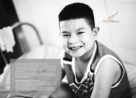 Nguyễn Thu Hiền, 14 tháng. Gia đình phát hiện em bị tim bẩm sinh từ lúc 10 tháng tuổi.