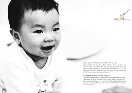 Nụ cười trẻ thơ hồn nhiên dẫu các em đang phải chống chọi lại những căn bệnh