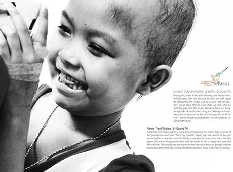 Bé Hoàng Trần Phi Ngọc, 8 tuổi đang chống chọi với căn bệnh ung thư máu