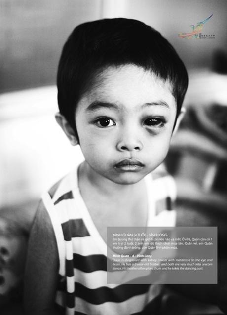 Bé Minh Quân, 4 tuổi, hiện đang điều trị ung thư thận