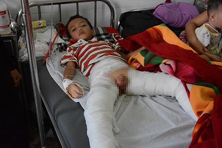 Bị bố đốt, cháu Vinh bị bỏng ở bộ phận sinh dục, hai chân.
