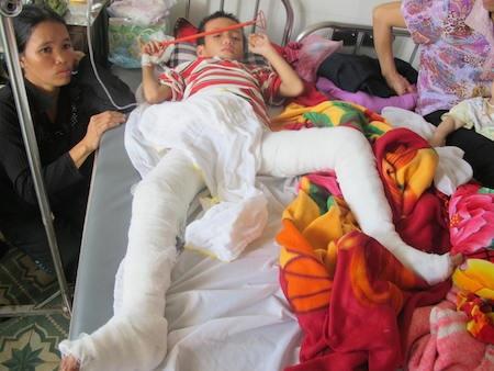 Chị Nguyễn Thị Xuân, mẹ cháu Vinh đau xót khi vết bỏng của con quá nặng.