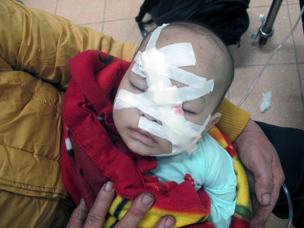 Bé Thùy Linh bị nhiều vết chém và đã được các bác sỹ phẫu thuật đã qua cơn nguy kịch.