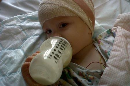 Cô bé dũng cảm trong đợt điều trị khi lần đầu phát hiện bị u não.