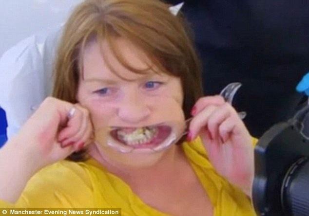 10 năm gắn răng vào lợi bằng keo vì sợ đi nha sĩ