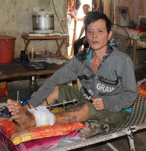 Anh Hạnh (ở huyện Tuy Phước) mổ 4 lần mà không khỏi nên được bác sĩ khuyên cắt chân cho nhanh?