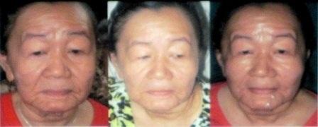 Cô gái hóa bà lão: Bệnh nhân thứ 2 trên thế giới - 2