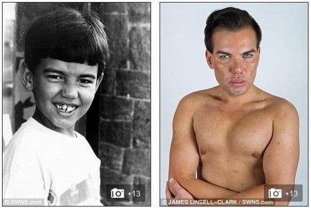 Alves lúc còn nhỏ (trái) và ngoại hình thay đổi khi trưởng thành nhờ dao kéo