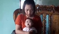 Xót xa bé 4 tháng tuổi bị tim bẩm sinh, hở hàm ếch