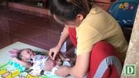 Thương cháu bé 3 tháng tuổi khổ sở với hậu môn nhân tạo
