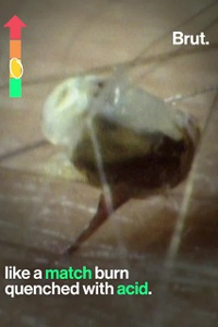 """Để bị cắn hơn 1000 lần,nhà khoa học hoàn thành """"Thang đo độ đau do côn trùng đốt"""""""